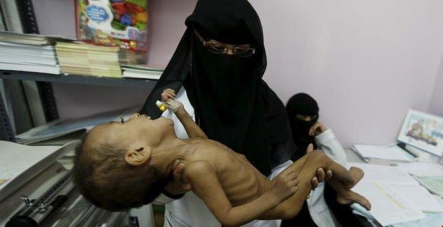 سازمان ملل: یمنی ها از روی فقر به گدایی، کار و ازدواج بچه ها رو آورده اند