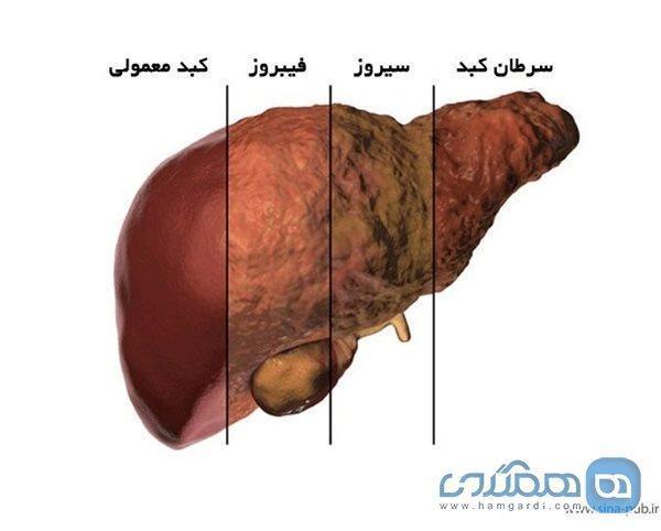 سکته عامل مرگ 80 درصد مبتلایان کبد چرب پیشرفته است