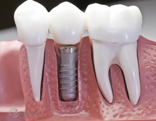 دندان های ایمپلنت هوشمند از نانوذرات مقاوم در برابر باکتری ها